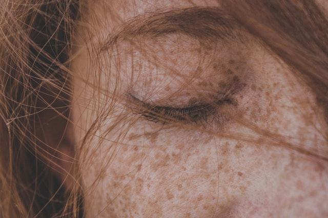 przebarwienia skórne
